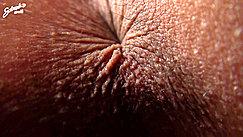 Anus Closeup